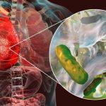 Les infections nosocomiales : qui sont les plus atteints et comment y remédier ?