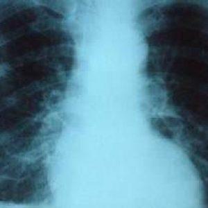 Symptômes bronchiolite