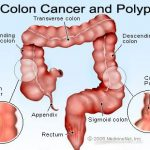 Symptômes cancer du colon
