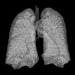 Symptômes cancer poumon