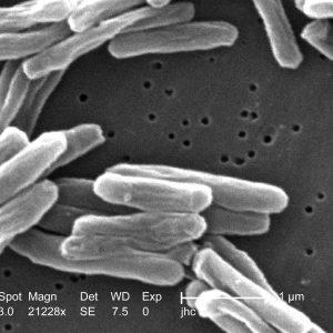 Symptômes tuberculose